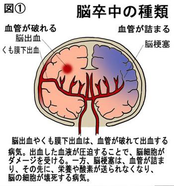 脳梗塞の種類